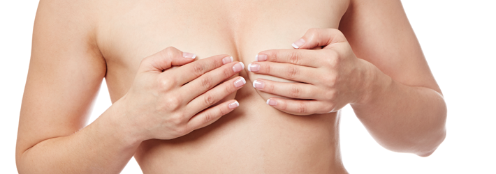 Breast surgery correction relieves the stress of unsuccessful surgeries performed elsewhere. At the Breast Center of Rosenpark Clinic, shifted implants, scars or asymmetry are corrected using the most modern surgical techniques.