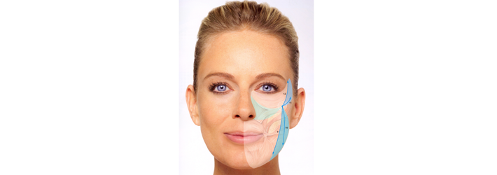 Volume therapy in windmill technique, starlike injections, fills in sunken areas of the face. The experts of Rosenpark Clinic can achieved results with that technique that were previously only possible through extensive facelift surgeries.