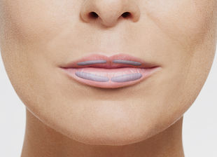 Over the course of time, the lips inevitably lose volume and tissue tone. With significant experience in lip treatments and a gentle injection technique, the specialists of Rosenpark Clinic give them back their natural fullness and beautiful contours.
